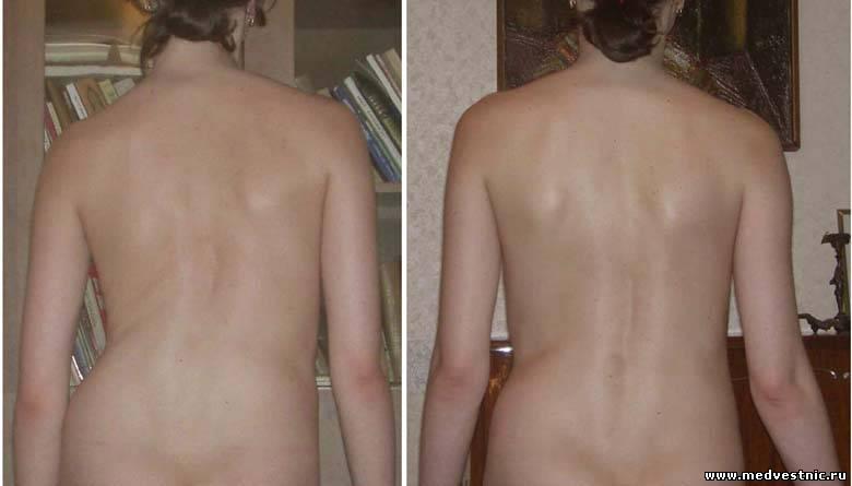 Лечение сколиоза 2 степени 14 лет
